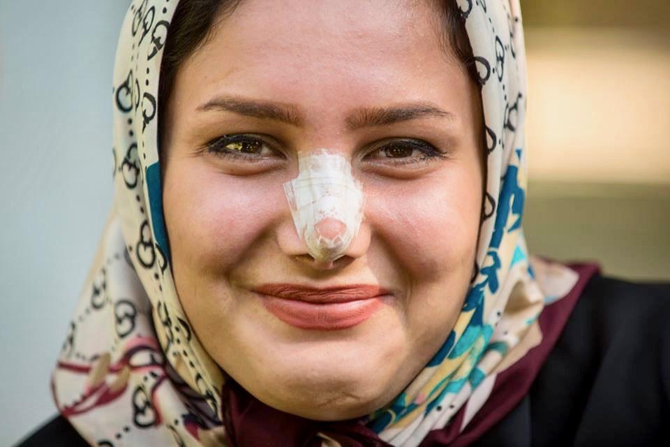 rinoplastica donne iraniane
